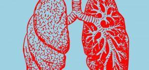 Marihuana nie zwiększa ryzyka raka płuc, CBDLeczy.pl